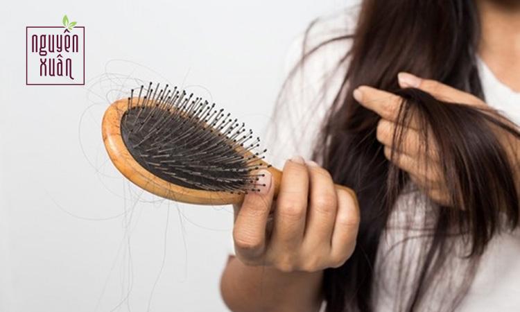Mẹo 5 cách chữa rụng tóc và kích thích mọc tóc bạn cần biết